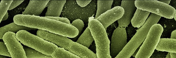 Are you planning to reopen your premises? Then you'll need to take steps to reduce the risk of Legionella (Legionnaire's disease)